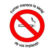 le tabagisme nuit à la santé de vos implants!