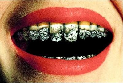 Tabagisme VS santé bucco-dentaire