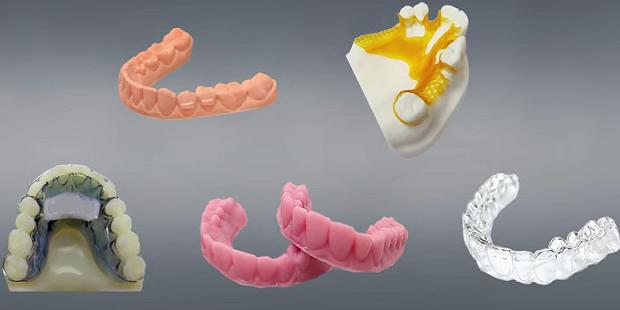 L'impression 3D ou la révolution de la dentisterie esthétique