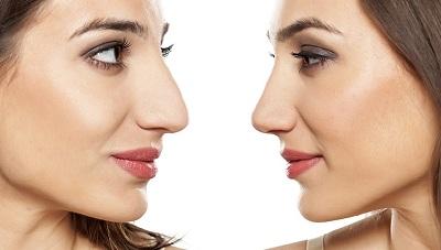 Focus sur la chirurgie esthétique du nez