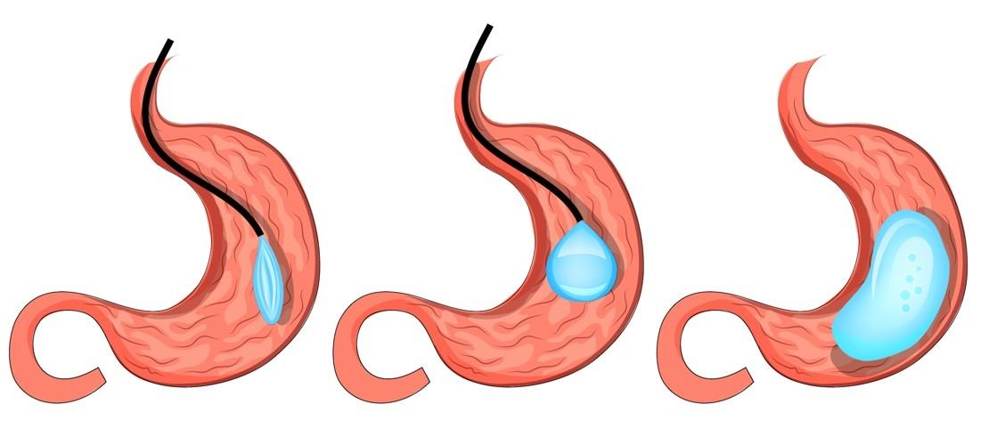 La pose du ballon intra-gastrique, une approche chirurgicale prometteuse pour la perte de poids