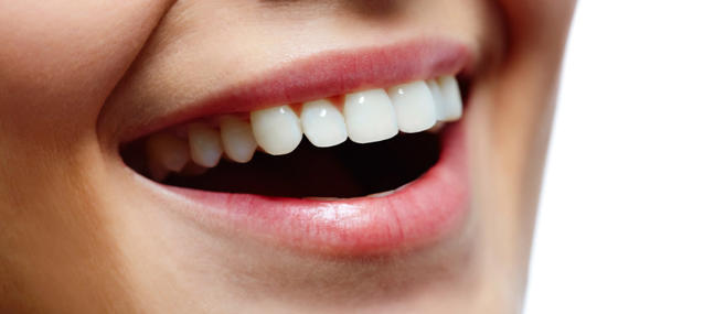 Avis sur les facettes dentaires