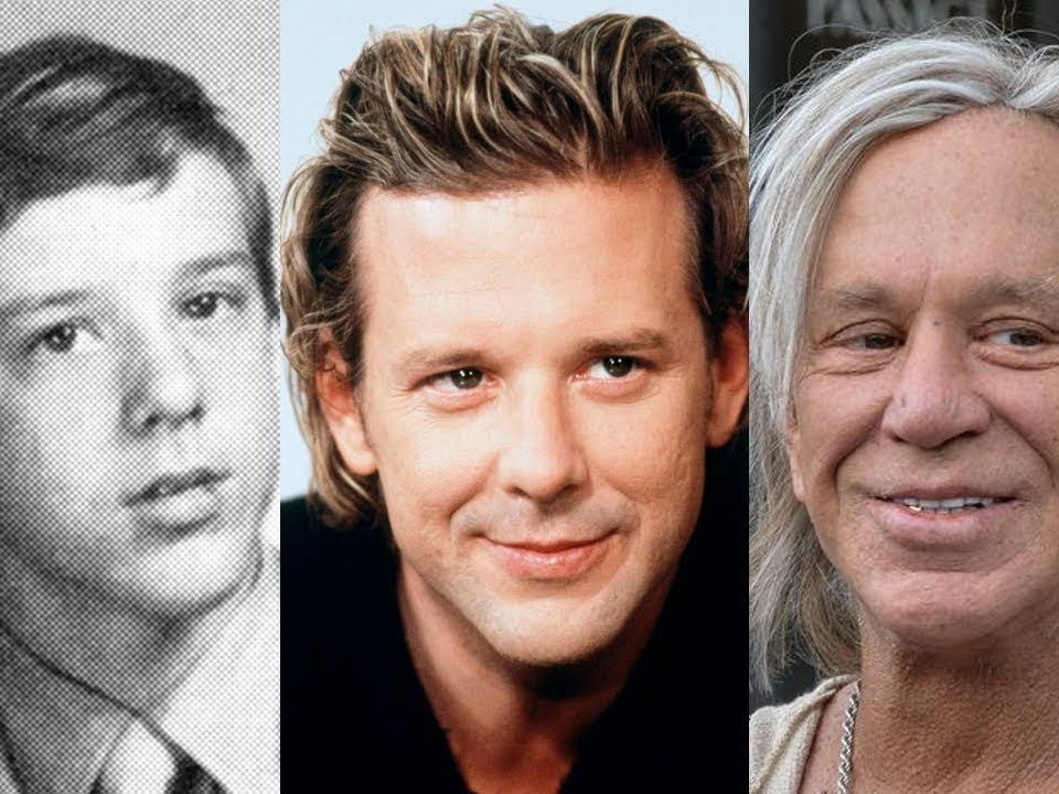 Mickey-Rourke-chirurgie-esthetique