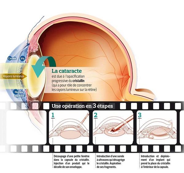 chirurgie cataracte Belgique