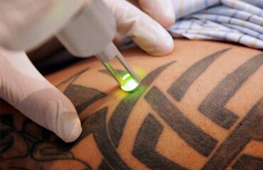 detatouage laser tunisie