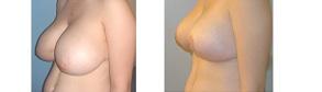 réduction mammaire en tunisie