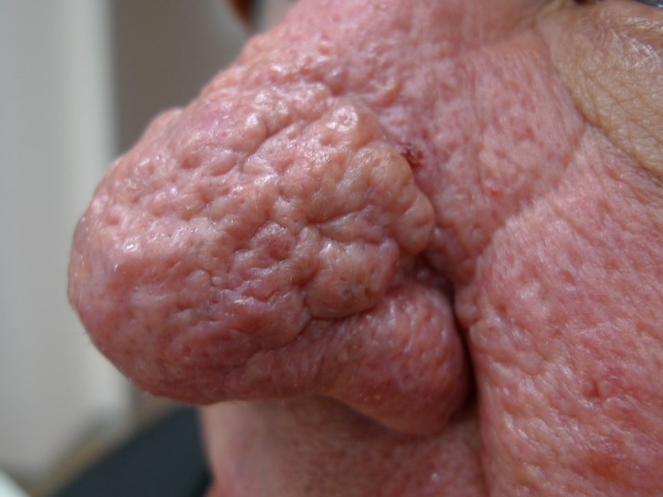 traitement-rhinophyma-tunisie