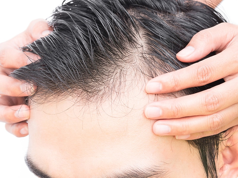 Greffe-cheveux-tunisie