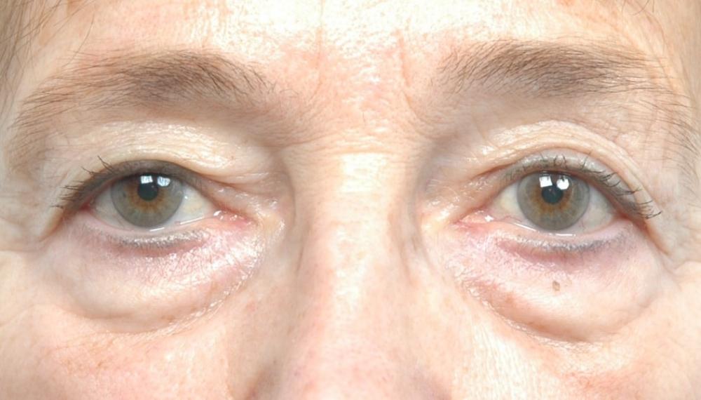blepharoplastie-chirurgie-paupieres