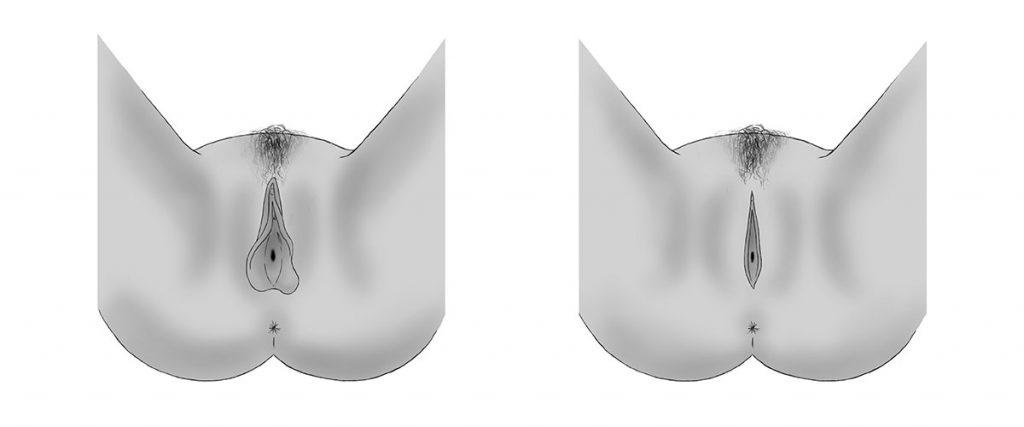 labioplastie-reduction-petites-levres