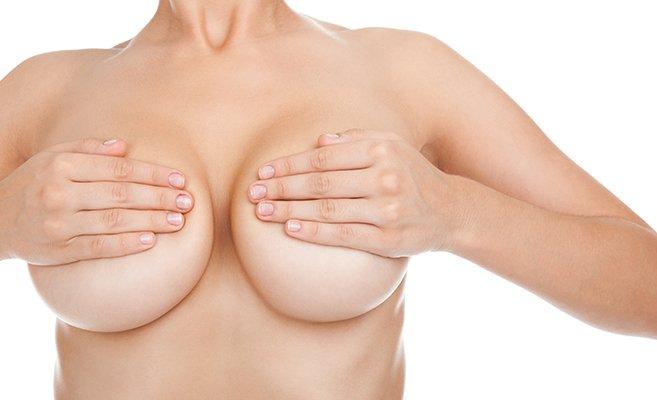 Ptose et hypertrophie mammaire