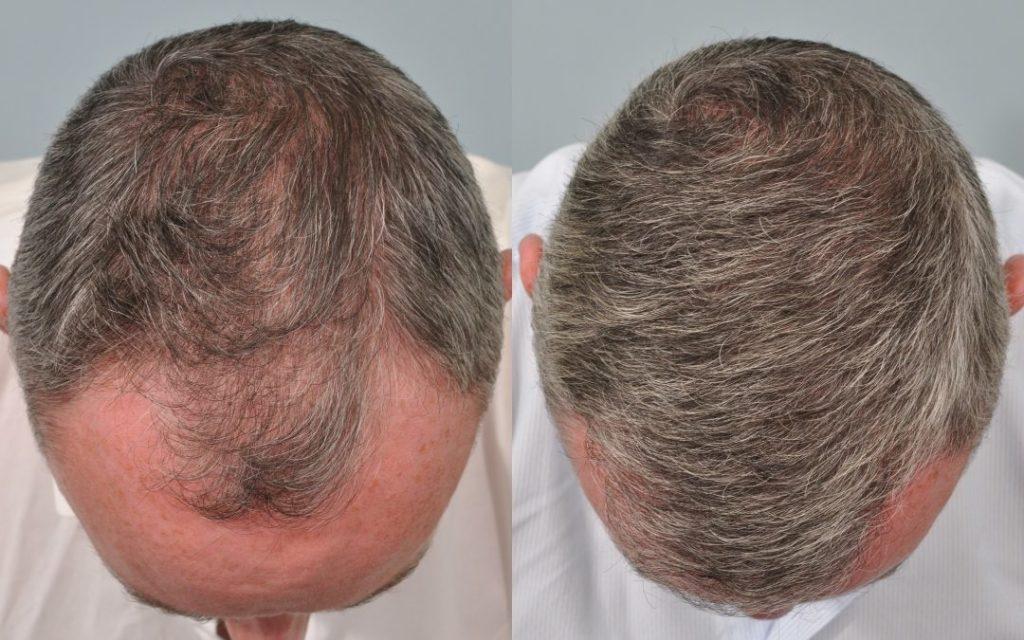 greffe cheveux Belgique