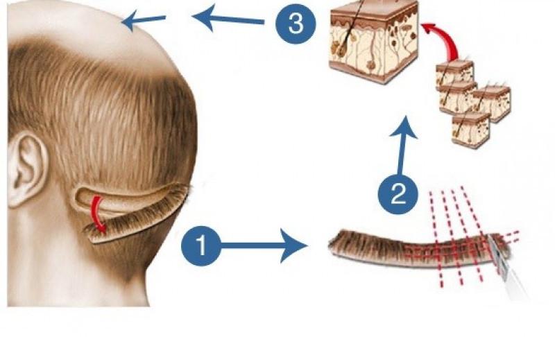 deroulement-greffe-cheveux-turquie