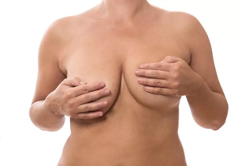 correction-asymetire-mammaires-prix-belgique