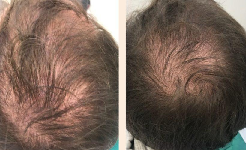 resultat-prp-cheveux
